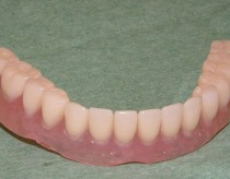 Mini implants anchored removable full lower denture